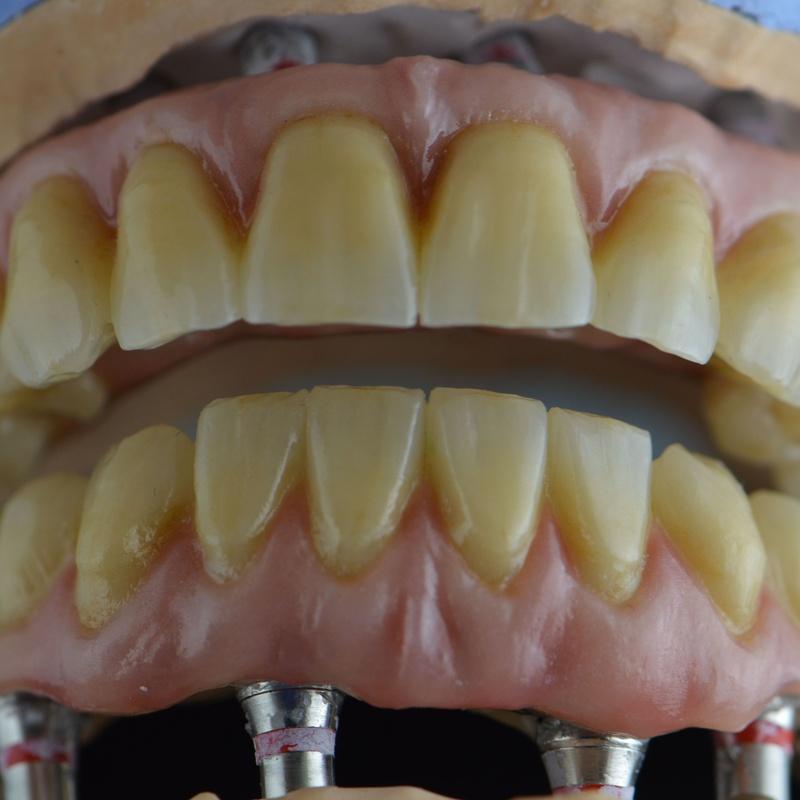 zirconio monolítico: Productos y servicios de Tecnolab Dental Galicia
