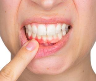 Sabías que existe una fuerte correlación entre el estado de tus encías y el riesgo de complicaciones por coronavirus?