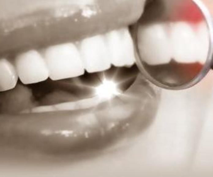 Odontología conservadora: Tratamientos de Clínica Saúco
