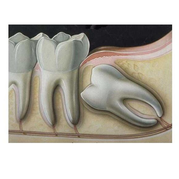 Cirugía: Tratamientos de Clínica Dental Beyer