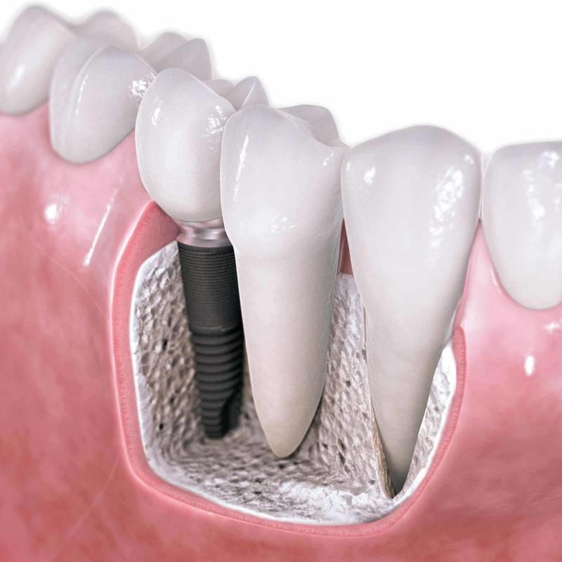 Implantología: Catálogo de Centro de Salud Dental FamilDent