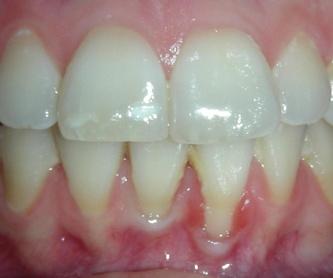 Estudio Periodontal: Tratamientos y Productos de Odontología Integral Fernando Román