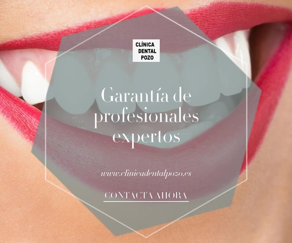 Implantes dentales en Vigo | Clínica Dental Pozo
