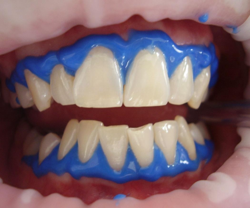 Curiosidades de la historia del blanqueamiento dental