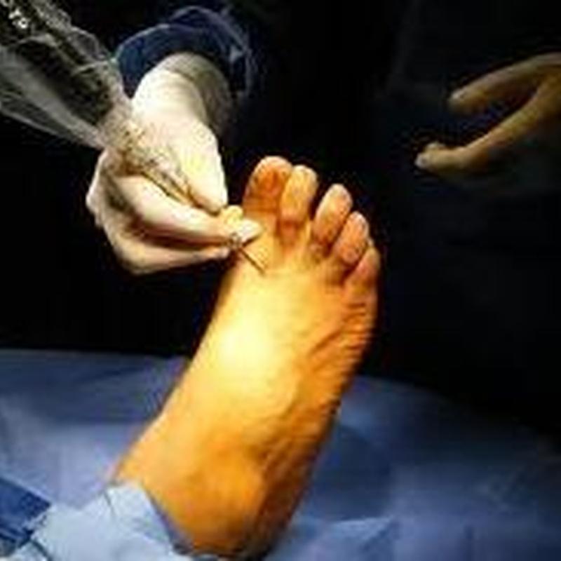 Cirugía podológica: SERVICIOS de Clínica Podológica Deusto