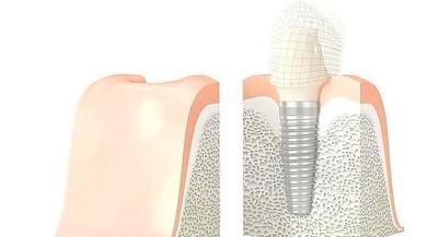 La naturalidad, el último reto de los implantes dentales