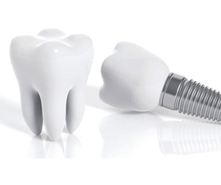 Implants dentals