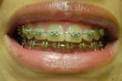 Todos los productos y servicios de Clínicas dentales: Dra. Mª José Cadiñanos