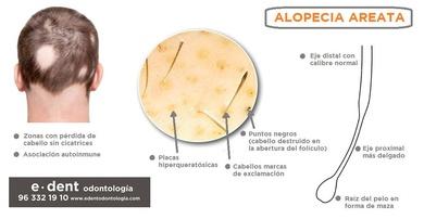 """""""Alopecia areata"""", infección buco-dental que te puede causar perdida de cabello"""