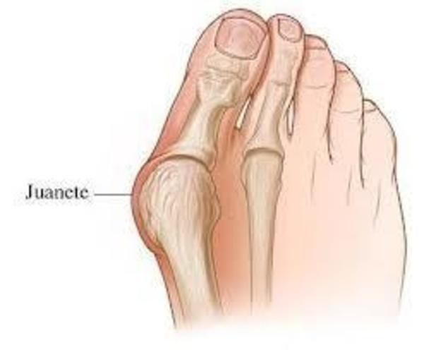 Cirugía pies: Catálogo de José Luis Martínez Soriano