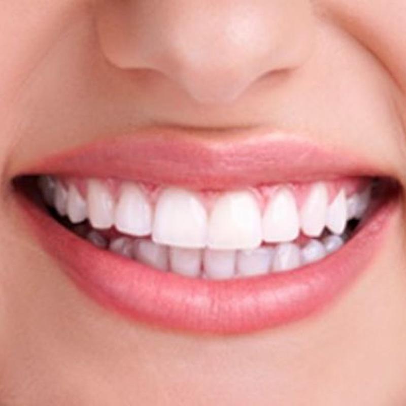 Odontologia Neurofocal: Tratamientos de Abando Hortz Klinika
