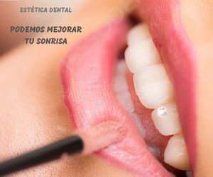 Implantes dentales en Guissona | Iessodent