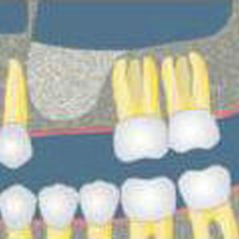 ELEVACIÓN DE SENO MAXILAR: Tratamientos de Clínica Dental Ángel Artiz