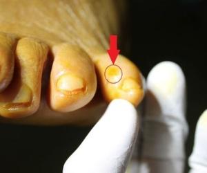 Cirugía Mínima Incisión en Heloma Interdigital