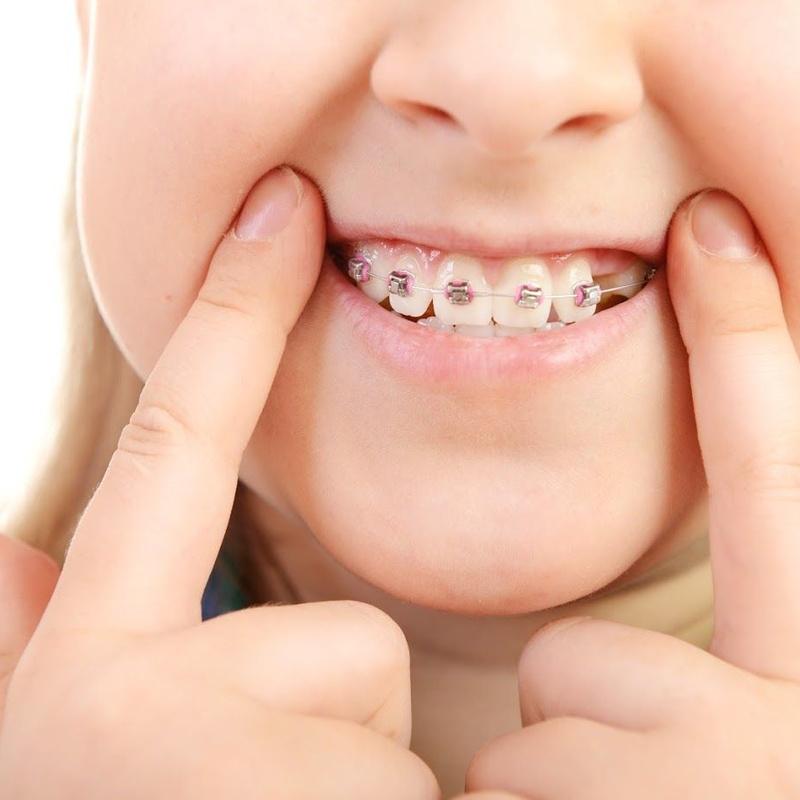 Ortodoncia funcional y ortodoncia interceptiva en niños y adolescentes: Tratamientos de Moncloa Clínica Dental