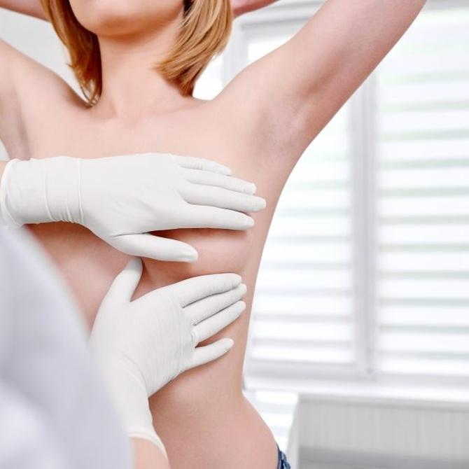 Seguimiento del cáncer de mama