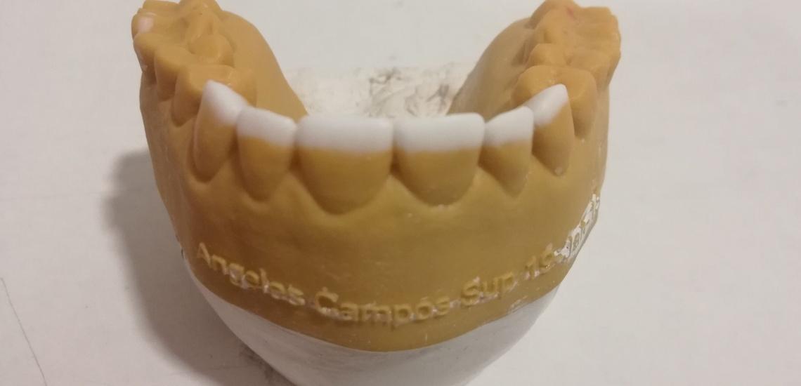 Prótesis dentales en Valencia, Xanfra Centro Odontotécnico