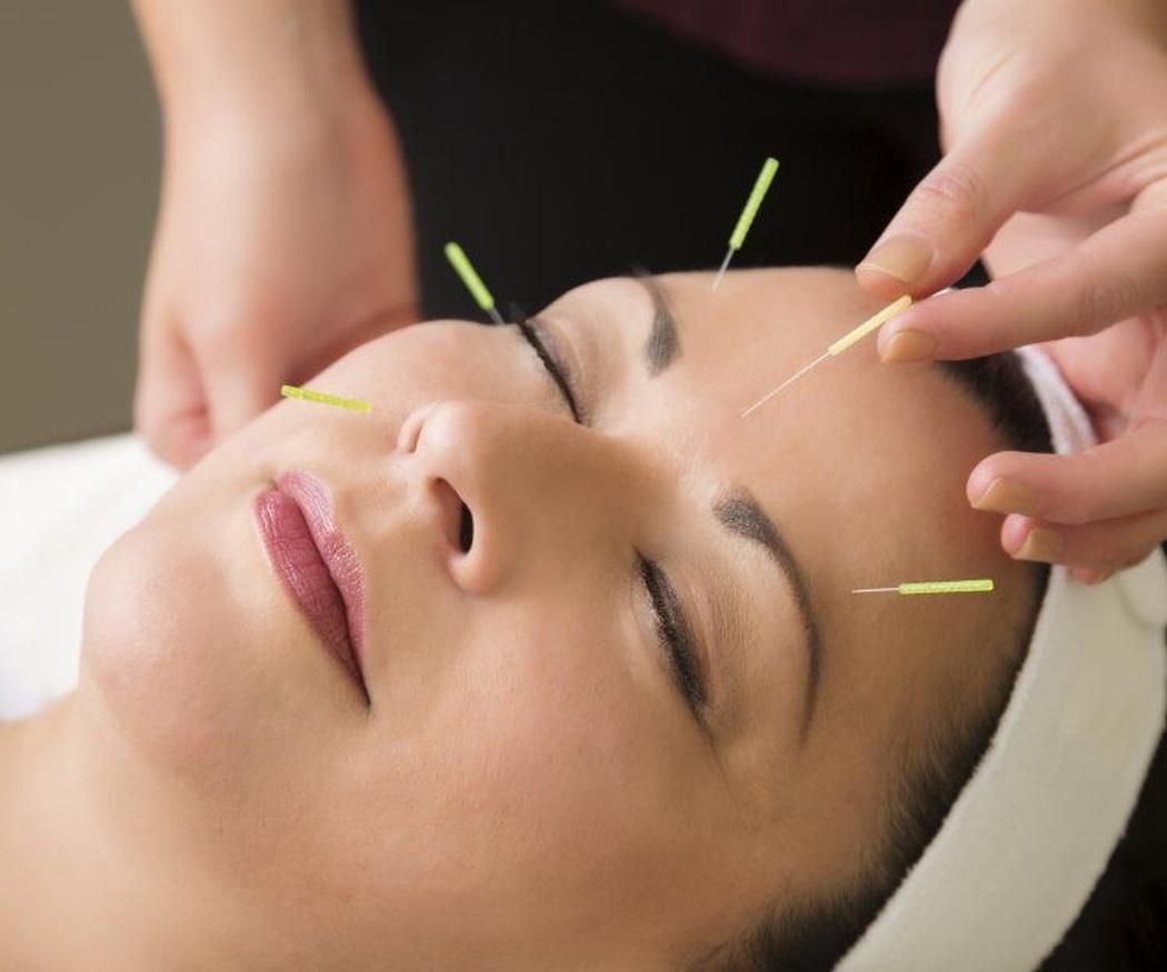 Así surgió la acupuntura