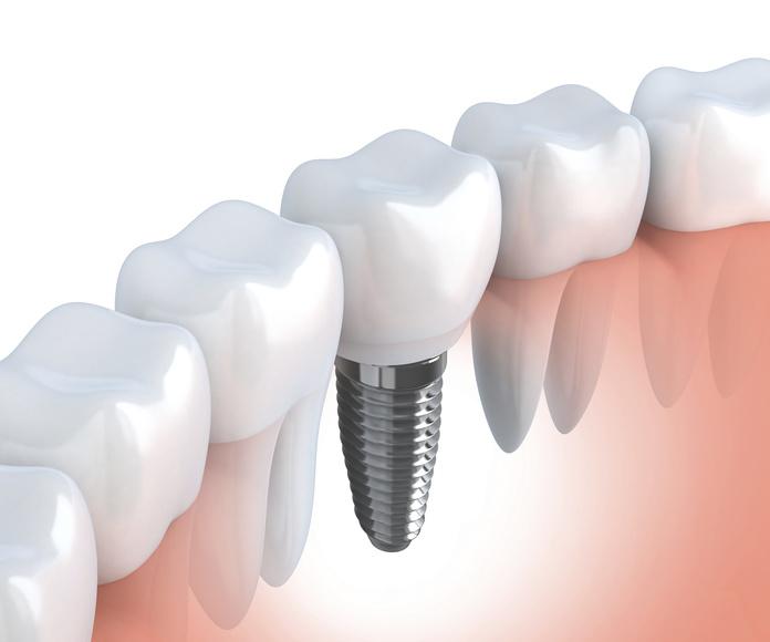 Cirugía oral e implatología : Especialidades  de Clínica Dental Baviera