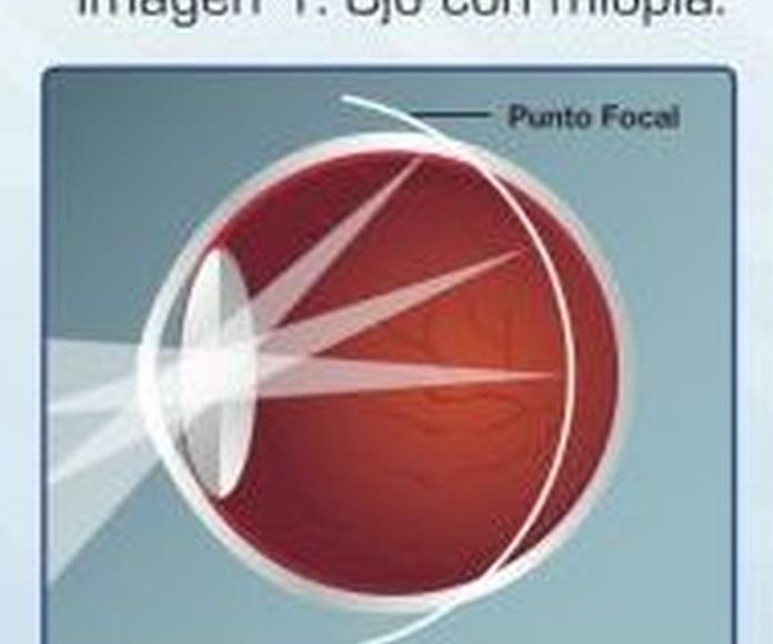 Lentes de contacto para el control de la miopía: Óptica y audiología de CENTRO OPTIFON (Óptica & Audiología)