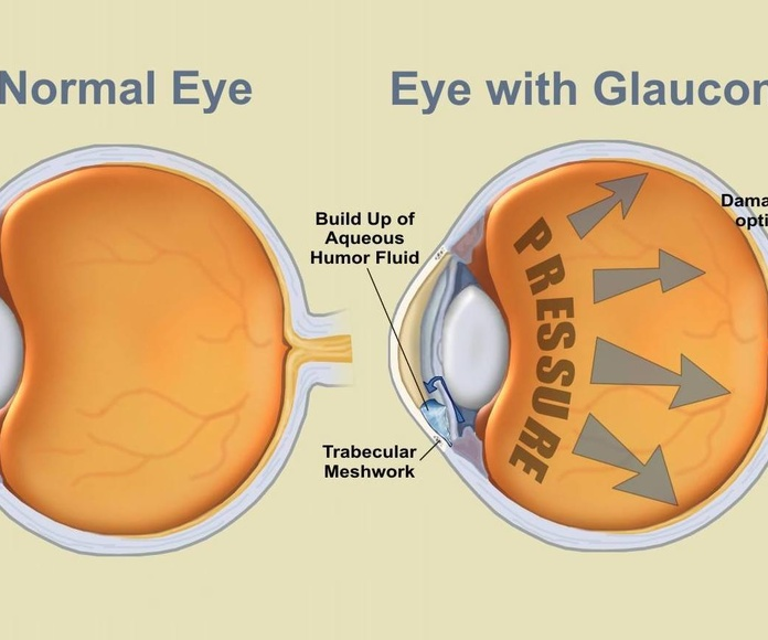 Glaucoma: Catálogo de Visual Tegueste Ópticos