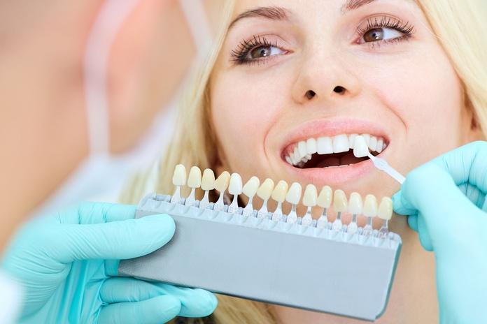Estética dental: Servicios de Alberto Pardo Sancho