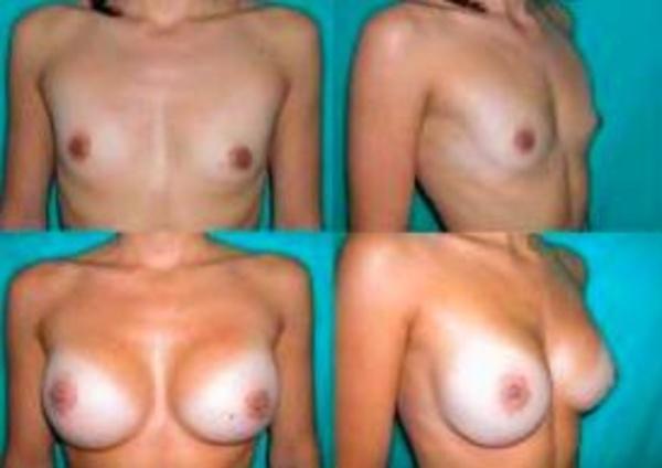 Aumento de mamas 25 % descuento: CIRUGIAS Y TRATAMIENTOS de Clínica Doctor Soriano