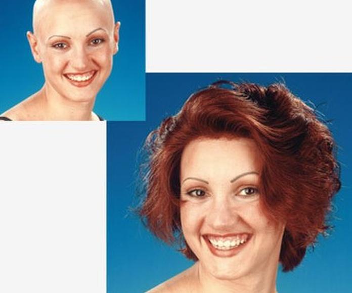 Tratamiento en caso de quimioterapia: Tratamientos de Rueber