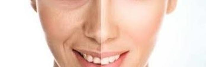 Estetica Facial, Antequera
