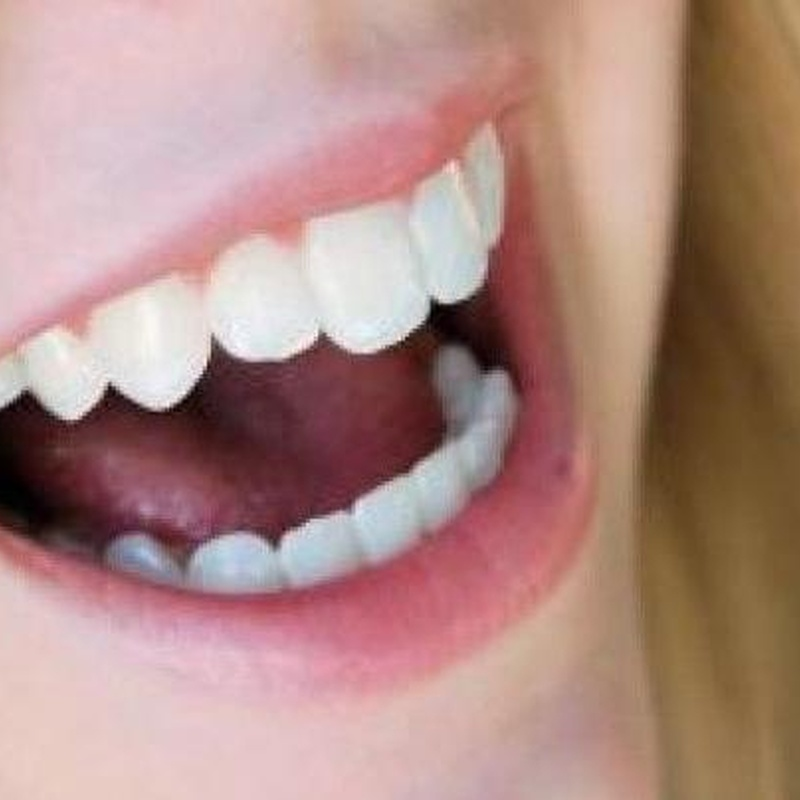 Odontopediatría: Tratamientos de Angelina Castro Redondo