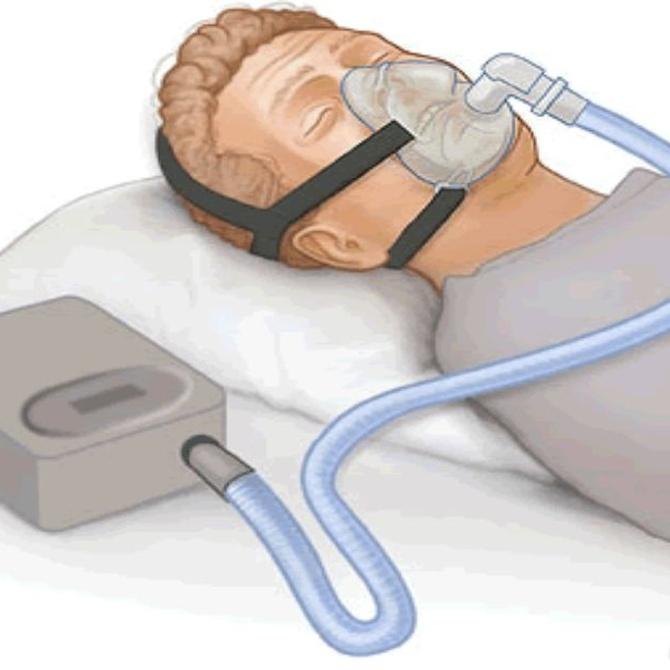 El tratamiento para la apnea del sueño