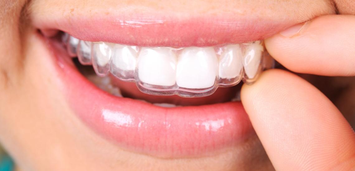 Clínicas dentales con precios en Embajadores, Madrid, con los últimos avances odontológicos