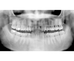 Radiografías panorámicas
