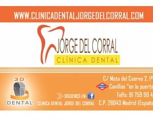 Carillas dentales estética en Madrid