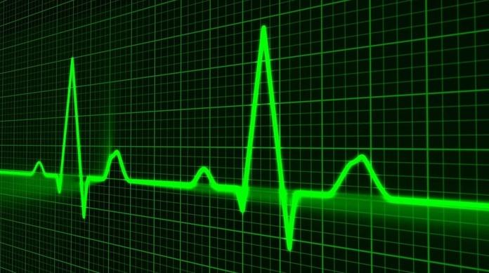Electrocardiograma veterinario