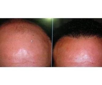 Tratamientos capilares : Productos y servicios   de Pelucas Gamboa