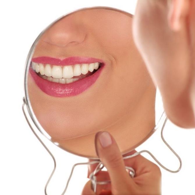 Lo que quieres saber sobre las carillas dentales de porcelana
