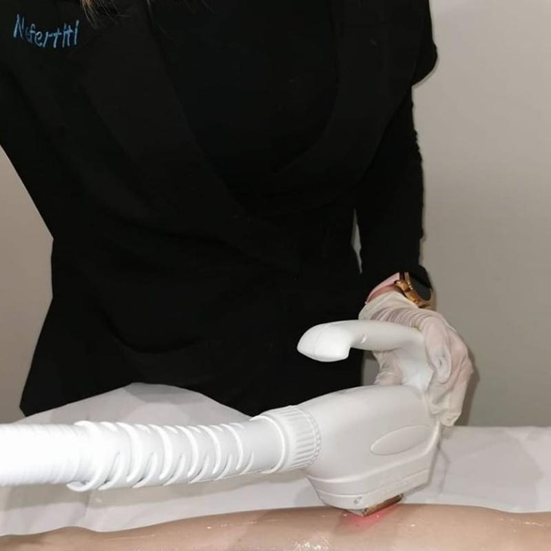Depilación láser SHR Indolora: Servicios de Nefertiti Estética Avanzada