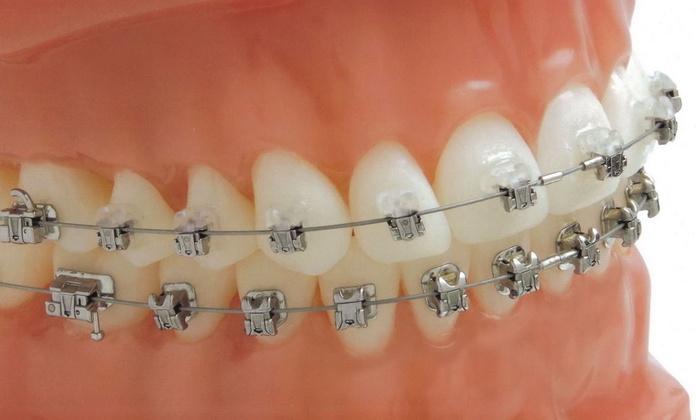 Ortodoncia: Tratamientos de Centro Estética Dental García Marí