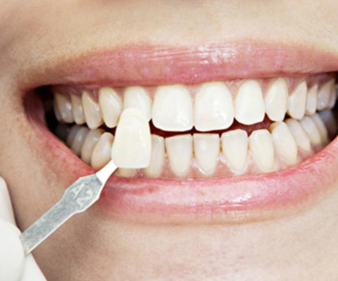 Blanqueamiento : Especialidades  de Clínica Dental Baviera