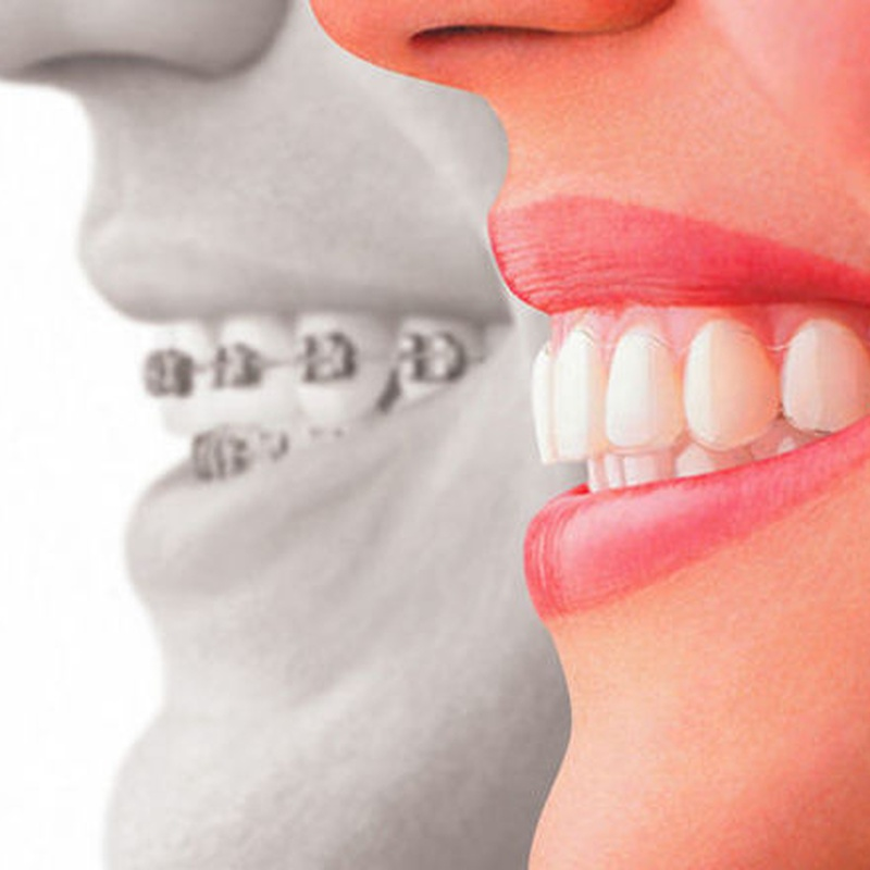 Ortodoncia: Tratamientos de Clínica Dental Rafael Menendez