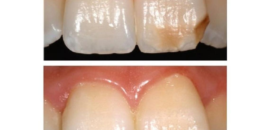 Soluciones de estética con carillas dentales en Gavà