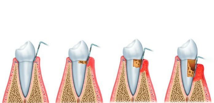 Periodoncia: Tratamientos de Centro Dental Europa