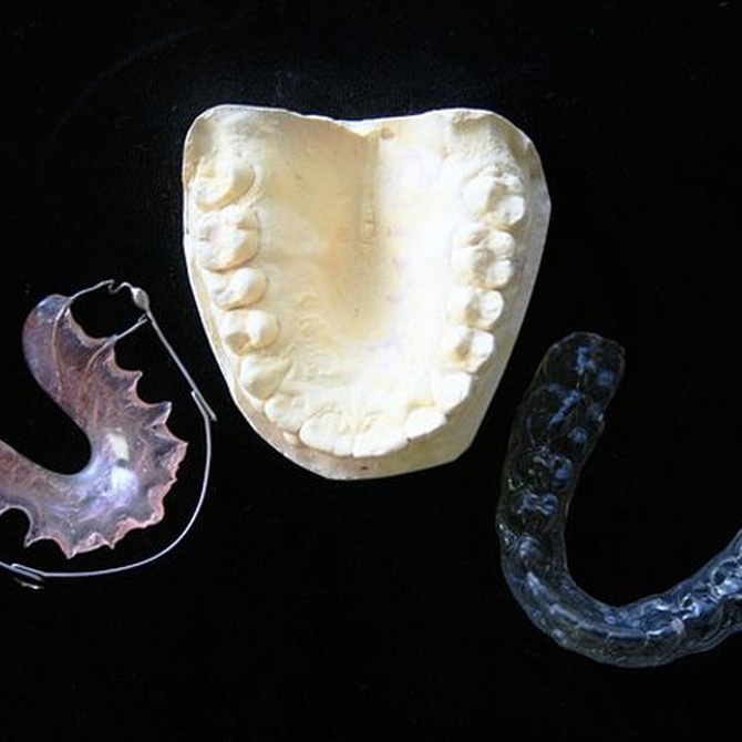Ortodoncia invisible, todo ventajas