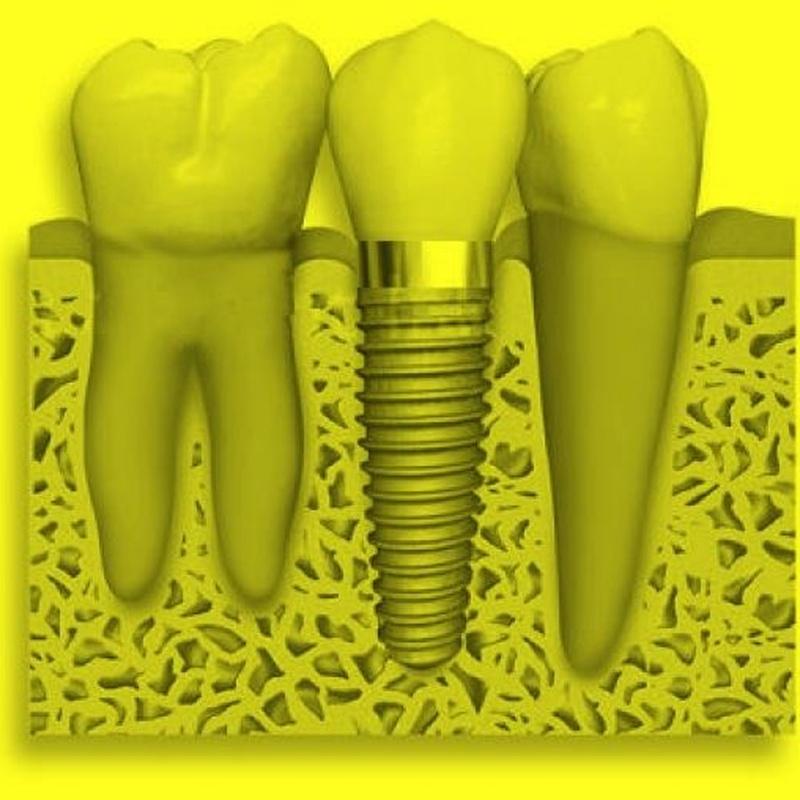 Implantes Dentales: Tratamientos de Cliesdent Clínica de Especialistas Dentales - Nueva Dirección!