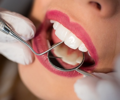 Para qué sirven los retenedores de ortodoncia