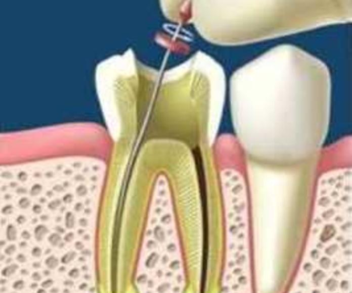 Endodoncias: Tratamientos de Clínica Dental Dr. de la Torre