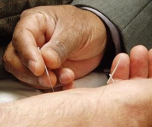 Tratar el sobrepeso con acupuntura
