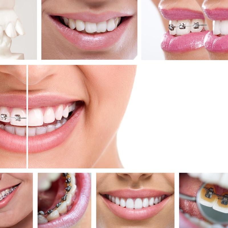 Tipos de aparatos de ortodoncia