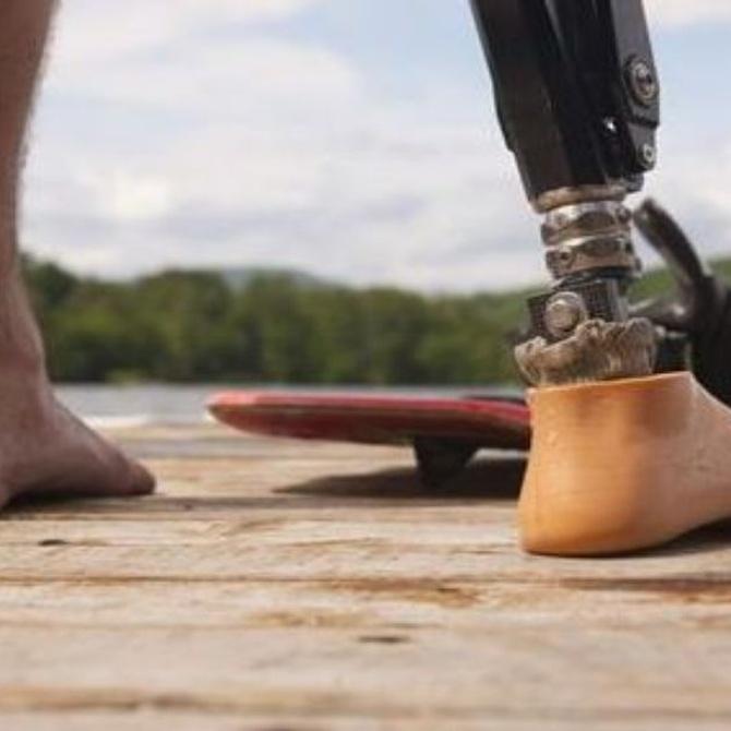 ¿Cómo fue la primera prótesis?